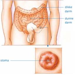 Development of the anus - 2 part 3